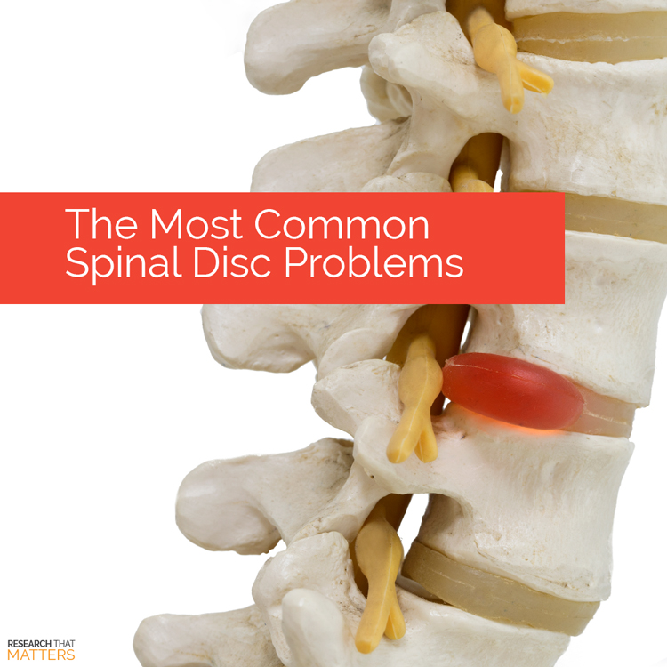 Spinal Decompression in Coral Springs FL